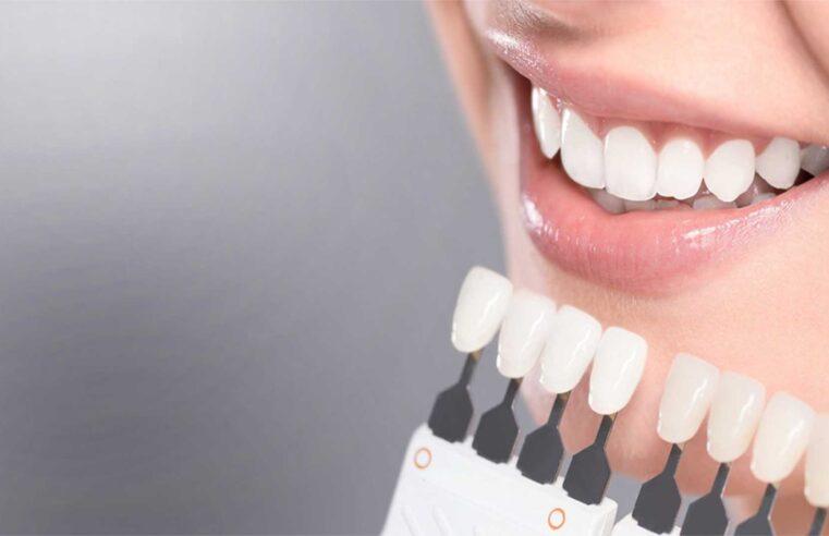 Фотовідбілювання зубів – переваги і нюанси процедури